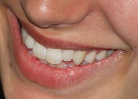 стоматология хай-тек